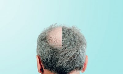 Aging Hair Loss: Prevention Tips Image
